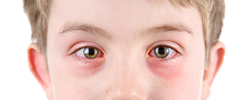 Most Burning Questions About Pink Eye