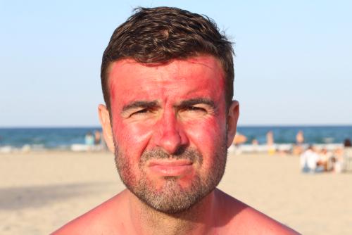 Got Sun? When to Seek Urgent Care for a Severe Sunburn