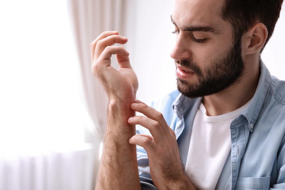 common summer rashes