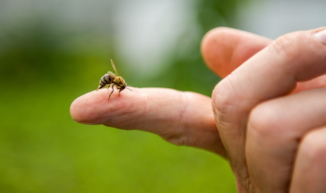 How to Treat a Bee Sting at Home and When to Seek Care